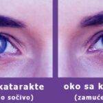 7 Simptoma Katarakte